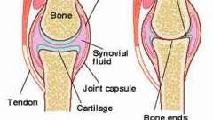 Артроз локтевого сустава: лечение препаратами и народными средствами