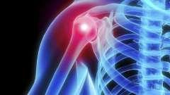 Артроз плечевого сустава: симптомы и лечение народными средствами, причины и методы диагностики