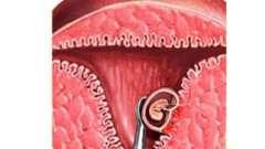 Безопасен ли аборт: сроки прерывания беременности