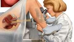 Биопсия шейки матки: что это и зачем проводится данная процедура?