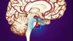 Что такое аневризма сосудов головного мозга? Аневризма головного мозга: симптомы, диагностика