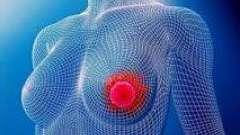 Что такое мастопатия, причины, симптомы и лечение