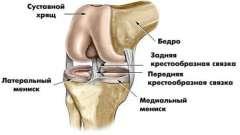 Что такое мрт коленного сустава, как делают, что покажет мрт коленного сустава?