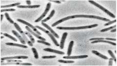 Для бактериальной клетки характерно наличие чего? Особенности, строение и функции бактериальной клетки