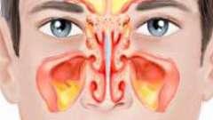 Двухсторонний гайморит: симптомы и лечение