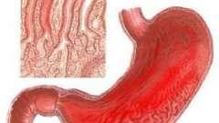 Гастрит: симптом внезапен, а лечение - длиною в жизнь
