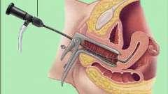 Гистероскопия матки - что это? Гистероскопия матки: виды, показания, стоимость процедуры
