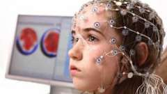 Энцефалограмма головного мозга: зачем нужна эта процедура?