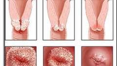 Эрозия шейки матки, прижигание: отзывы. Чем лечить эрозию шейки матки?