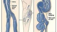 Как лечить варикоз. Лечение лазером варикоза: отзывы, стоимость