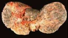 Как можно заразиться гепатитом с и что можно предпринять, чтобы этого не произошло