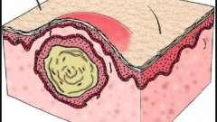 Как возникает киста.что такое киста желтого тела?