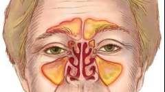 Каковы симптомы синусита? Лечение заболевания