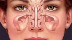 Катаральный гайморит: этиология, проявления и методы лечения
