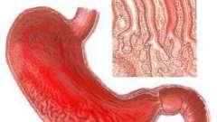 Катаральный гастрит: причины возникновения, симптомы и лечение заболевания