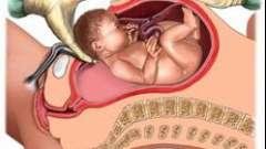 Кесарево сечение: восстановление после него и прогноз последующих родов