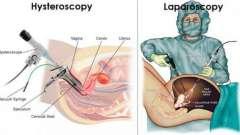 Лапароскопия и гистероскопия: показания, отзывы, что лучше