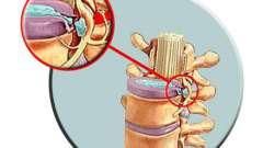 Лечение позвоночной грыжи: основные методики