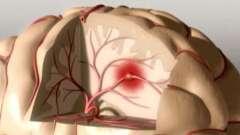 Микроинсульт: симптомы и лечение, причины и профилактика