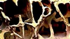 Микроскопическое строение кости. Особенности строения костей