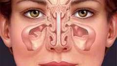 Можно ли греть нос при гайморите? При гайморите можно греть нос или нет?