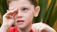 Не плачь, малыш, или как лечить коньюктивит у детей