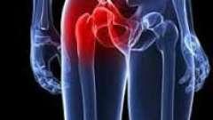 О чем сигнализируют боли в паху слева у женщин?