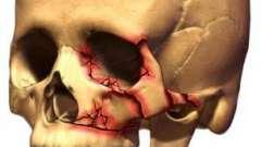 Переломы черепа: виды, симптомы, лечение и последствия