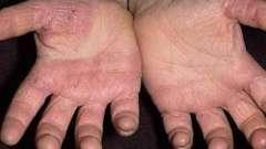 Почему появляется грибок кожи на руках и как его вылечить?