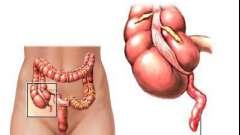 Причины и симптомы хронического аппендицита