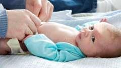 Пупок у новорожденных кровит, что делать? Обработка пупка