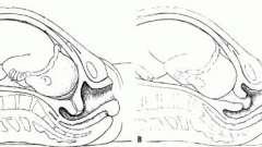 Раскрытие шейки матки на 2 пальца: когда рожать? Симптомы раскрытия шейки матки