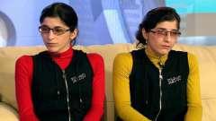 Сестры резахановы: история. Операция по разделению зиты и гиты резахановых