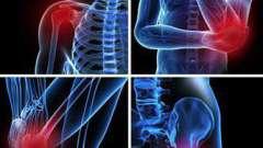 Симптомы бурсита тазобедренного сустава, диагностика, лечение народными средствами, медикаментозное лечение, фото