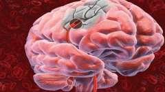 Симптомы при инсульте, а также описание первой медицинской помощи.