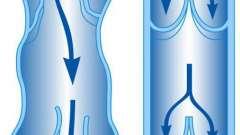 Варикозное расширение вен малого таза: симптомы, причины и методы лечения