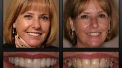 Вернуть красивую улыбку поможет несъемное протезирование зубов
