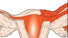 Воспаление маточной трубы: причины, симптомы, лечение