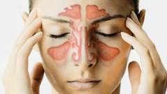 Воспаление придаточных пазух носа, или что такое синуситы