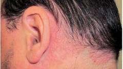 Вульгарный псориаз: фото, лечение