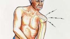 Вывих плечевого сустава: лечение в домашних условиях. Вывих плечевого сустава: причины