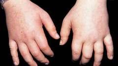 Задержка жидкости в организме: причины, симптомы и особенности лечения